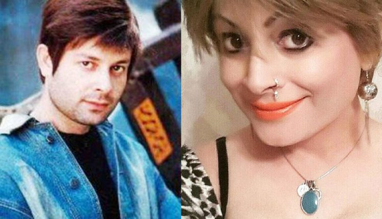 Bobby-Darling-before-and-after-sex-change